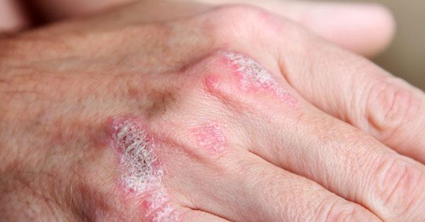 pikkelysömör kezelésének eredményei vörös foltok a karokon és az oldalakon