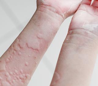 A leggyakoribb bőrbetegségek - fotókkal! - ezredev.hu - Egészség és Életmódmagazin