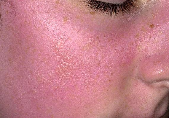piros foltok az arcon pontok formájában