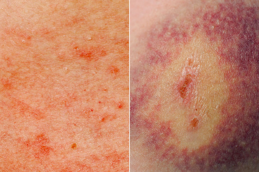 vörös foltok a bőrön kemoterápia után)