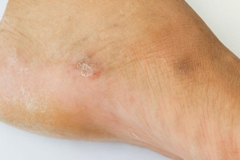 aludj a láb piros foltján pikkelysömör típusai és kezelésük fotó