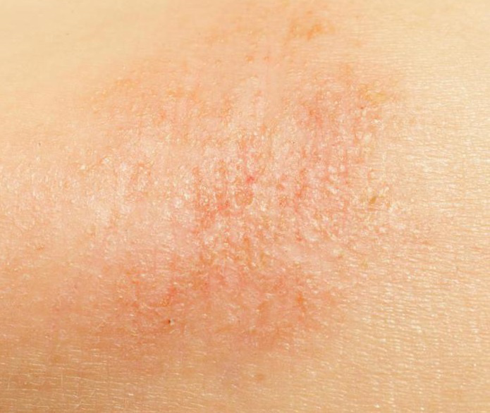 vörös folt jelent meg a száraz bőrről