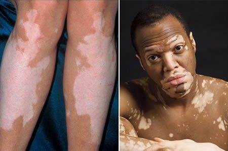 hogyan lehet fehéríteni a vörös foltokat a bőrön