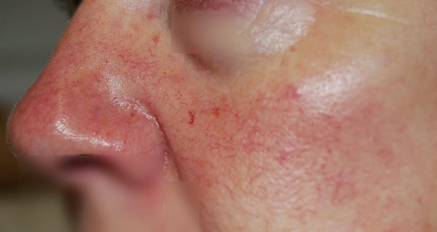 vörös foltok az orron, hogyan kell kezelni