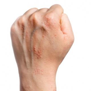 népi gyógymód viszketés és pikkelysömörrel való pikkelysmr ellen vörös foltok az arcon és a combokon