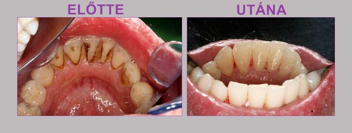 Hogyan távolítsuk el a lepedéket a fogainkról?