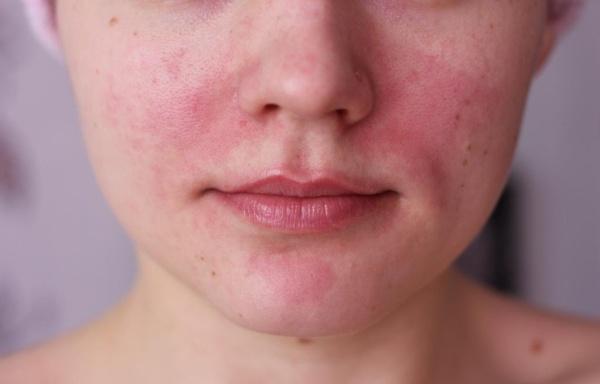 fürdés után vörös foltok az arcon