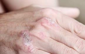 pikkelysömör kezelése karjaiban)