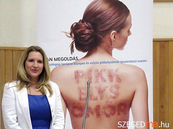 segédgyógyszerek a pikkelysömör kezelésében)