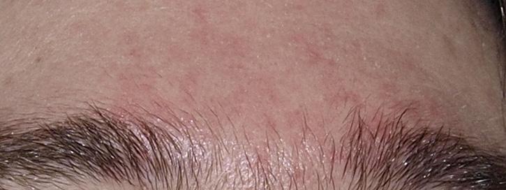 hámló bőr az arcon és vörös foltok)