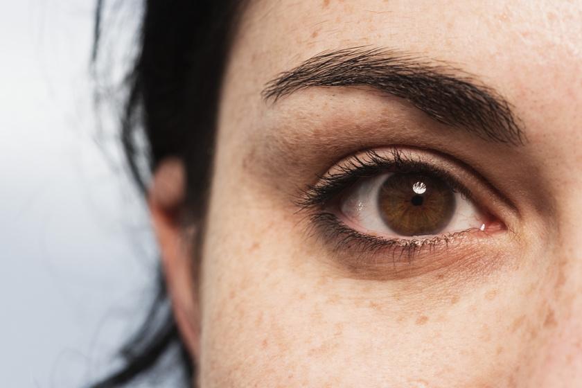 a szem körüli pikkelysömör kezelése)