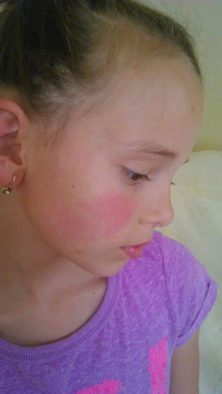 apró vörös foltok egy felnőtt arcán)