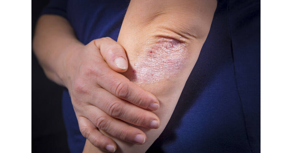 hogyan kell kezelni a pikkelysmrt a kar alatt