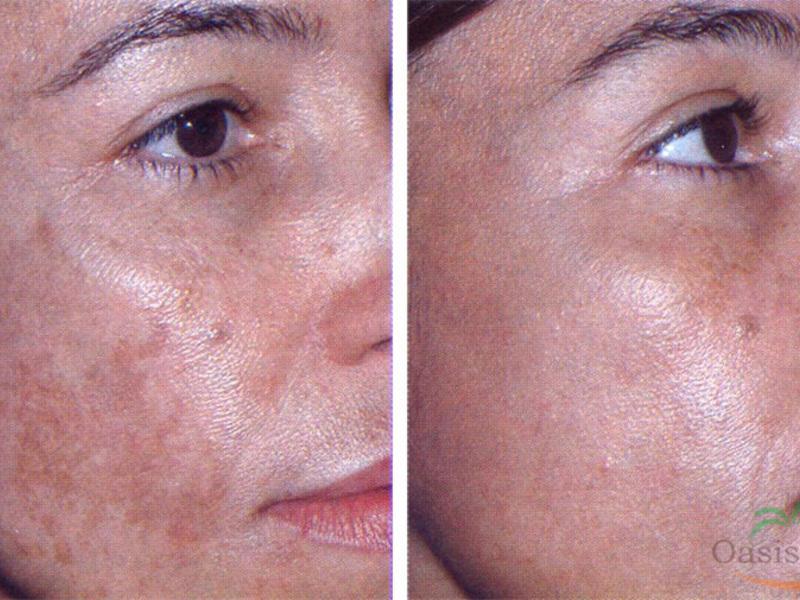 pigmentált vörös foltok az arcfotón kénes kenőcs a fej pikkelysömörére