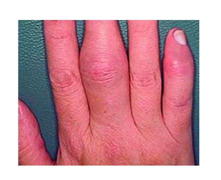 arthritis psoriasis kezelése)