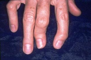 pikkelysömör arthritis kezelése)