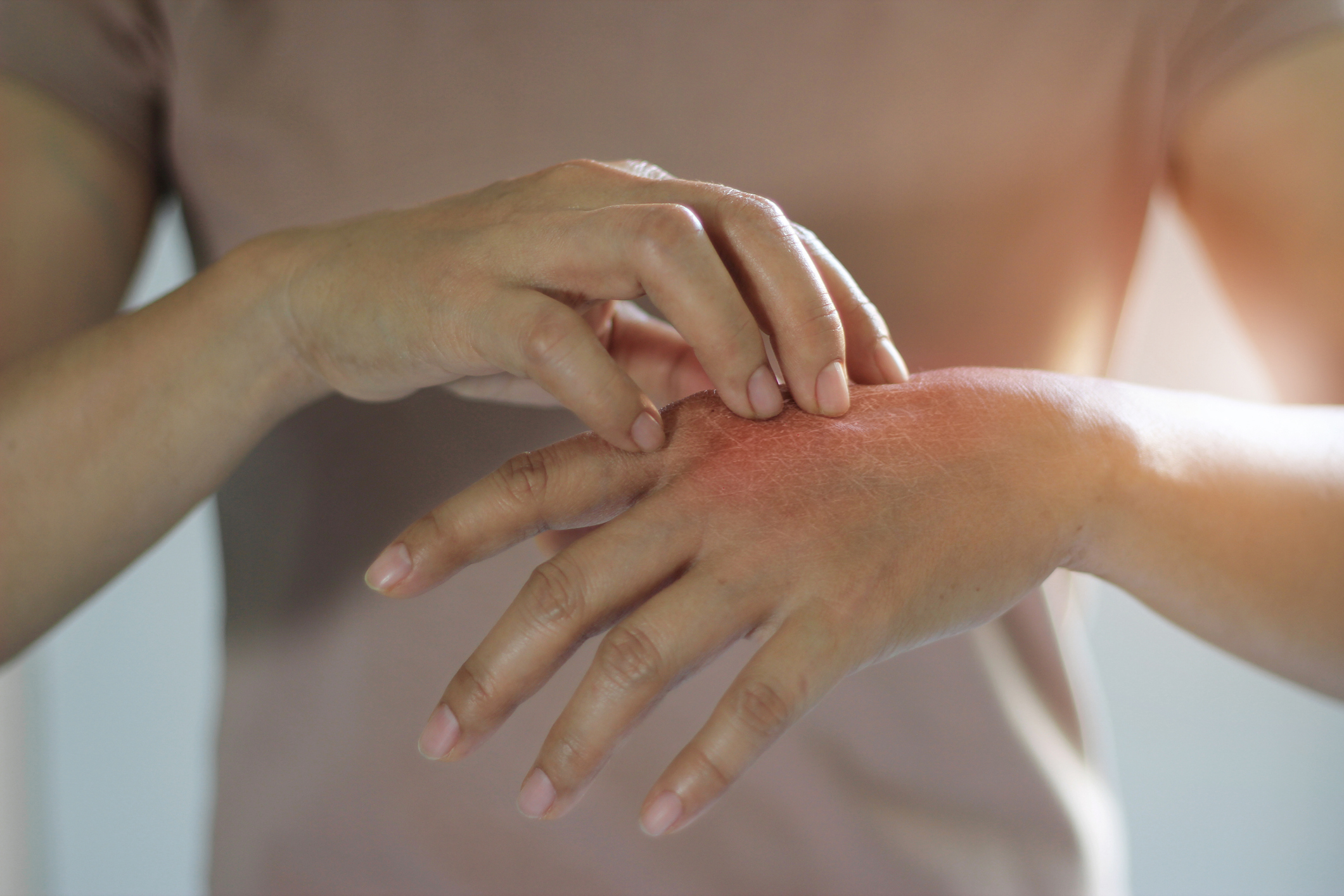 pikkelysömör hidrogén kezelése kiütések az arcon piros foltok formájában fotó