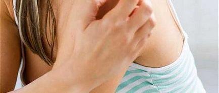Psoriasis fejbőr fotó tünetek