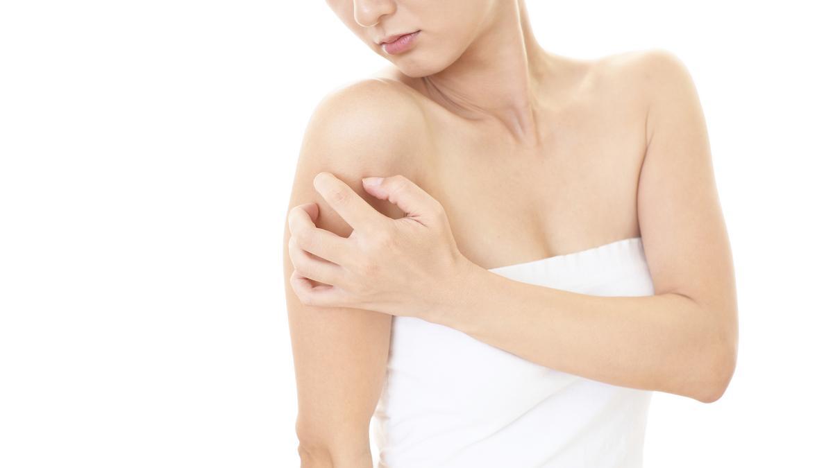 Milyen betegségre utalnak a vörös foltok? - Kárpáezredev.hu