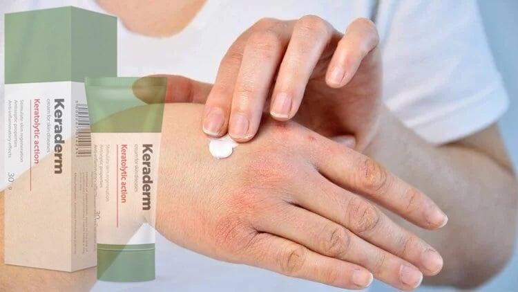 a pikkelysmr citosztatikus kezelse biztonságos pikkelysömör kezelése