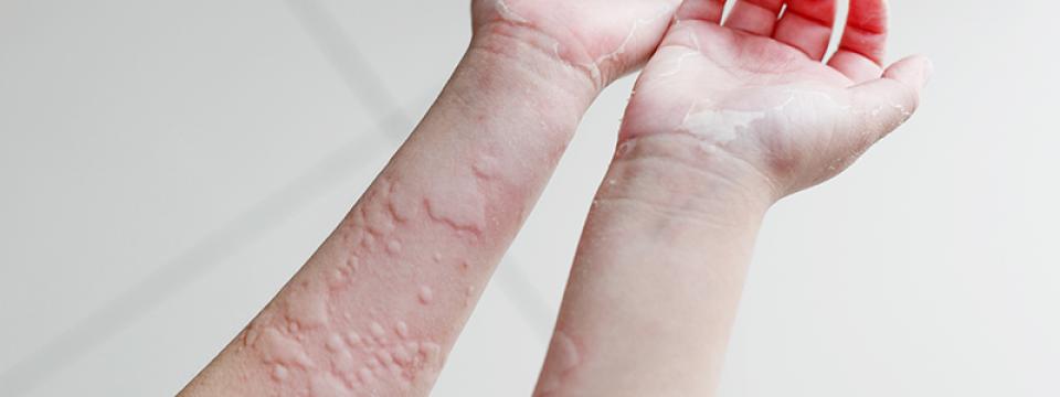 a bőrt vörös foltok borítják, mint fürdés után)