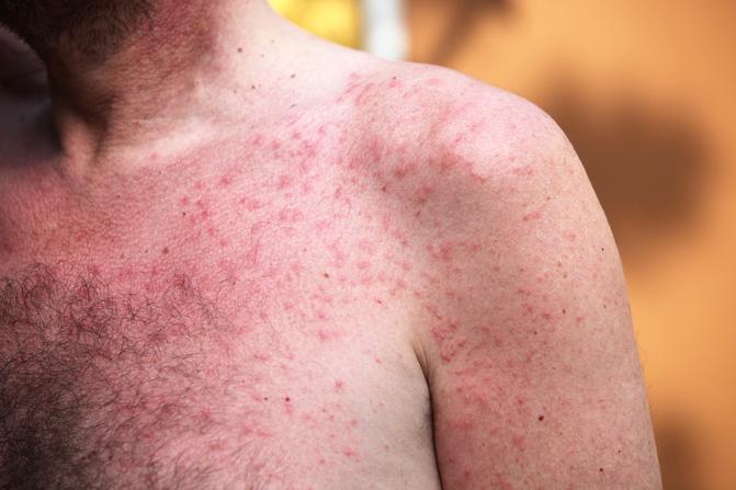 piros foltok jelentek meg a gyomorban, és a fénykép hámlik)