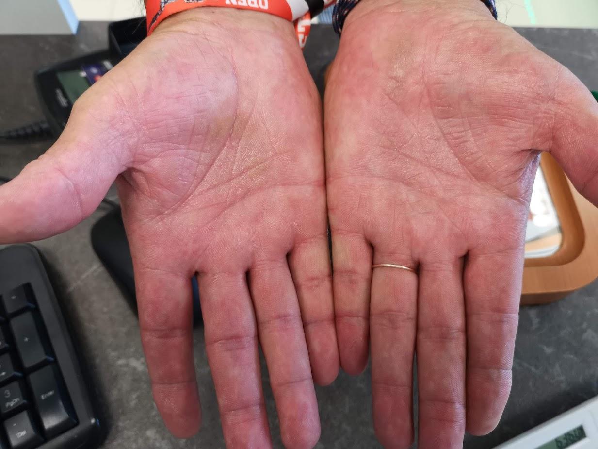 felpattant egy piros foltot a lábán viszket a leghatkonyabb kezels a pikkelysmr felülvizsgálatához