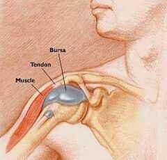 pikkelysömör a fején hagyma kezelés vélemények pikkelysömör kezelése akupunktúrával