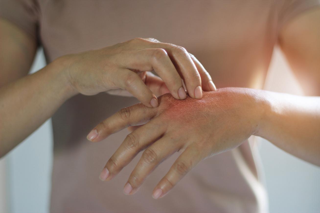 a kéz foltja piros és égő)