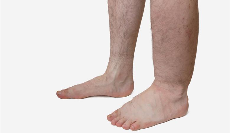 A lábak és a vörös foltok duzzadnak