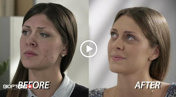 színterápiás kezelés pikkelysömörhöz a metotrexát alkalmazása a pikkelysömör kezelésében