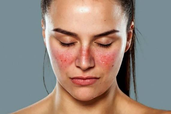 az arc fürdés után vörös foltokkal borul)