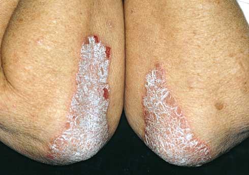 hogyan kell kezelni a pikkelysömör a lábát)