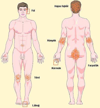 pontok a testen pikkelysömör kezelésére