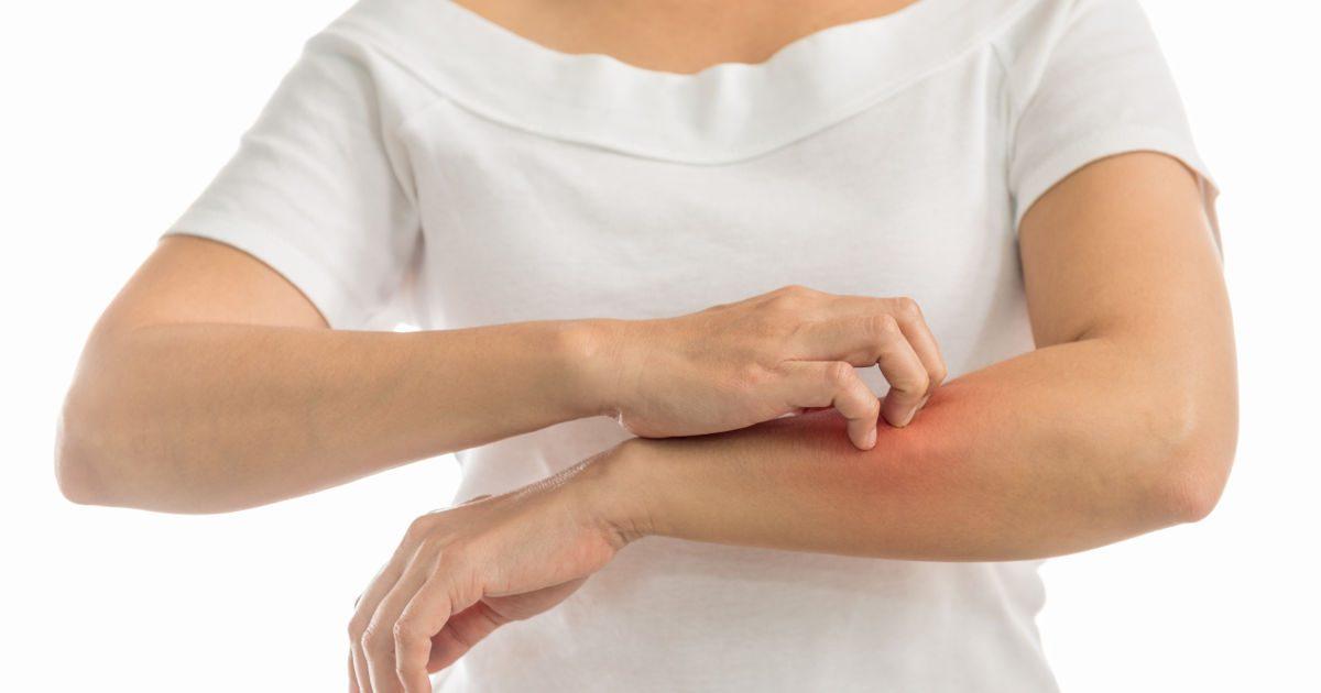 vörös foltok a hónalj alatt és a karokon élénkpiros foltok a lábakon viszketnek
