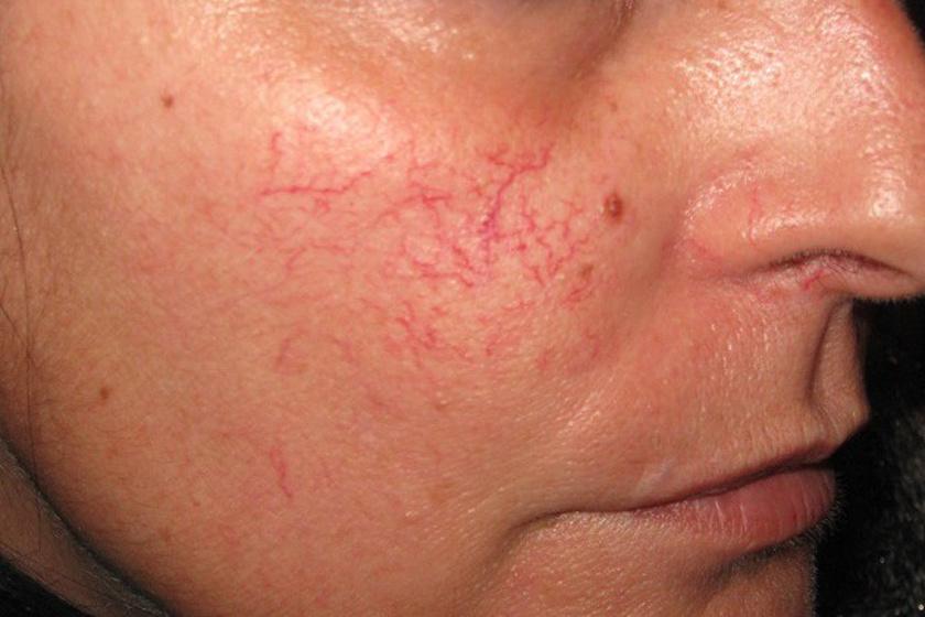 vörös foltok az orron, hogyan kell kezelni pikkelysömör a fejen fotótünetek kezelése