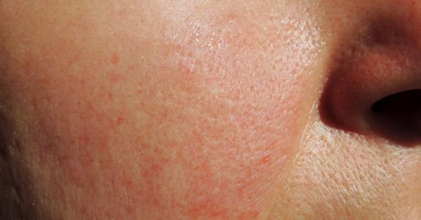 az arcon vörös foltok viszketés kezelés fotó