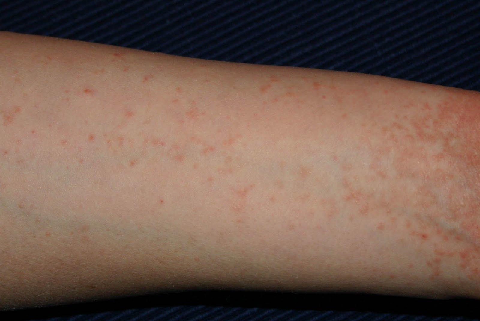 vörös foltok a lábakon, miután a viszketés fáj és megduzzad)
