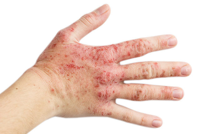 vörös foltok a kezén a napon)