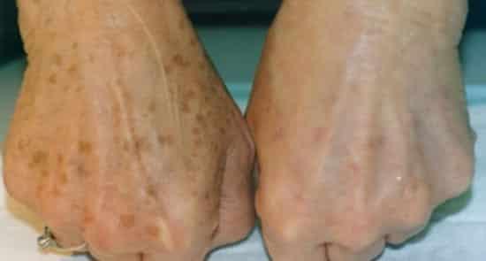 hogyan lehet fehéríteni a vörös foltokat a lábakon)