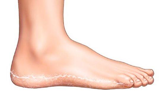 Piros foltokkal borított lábak - Gyermekekben