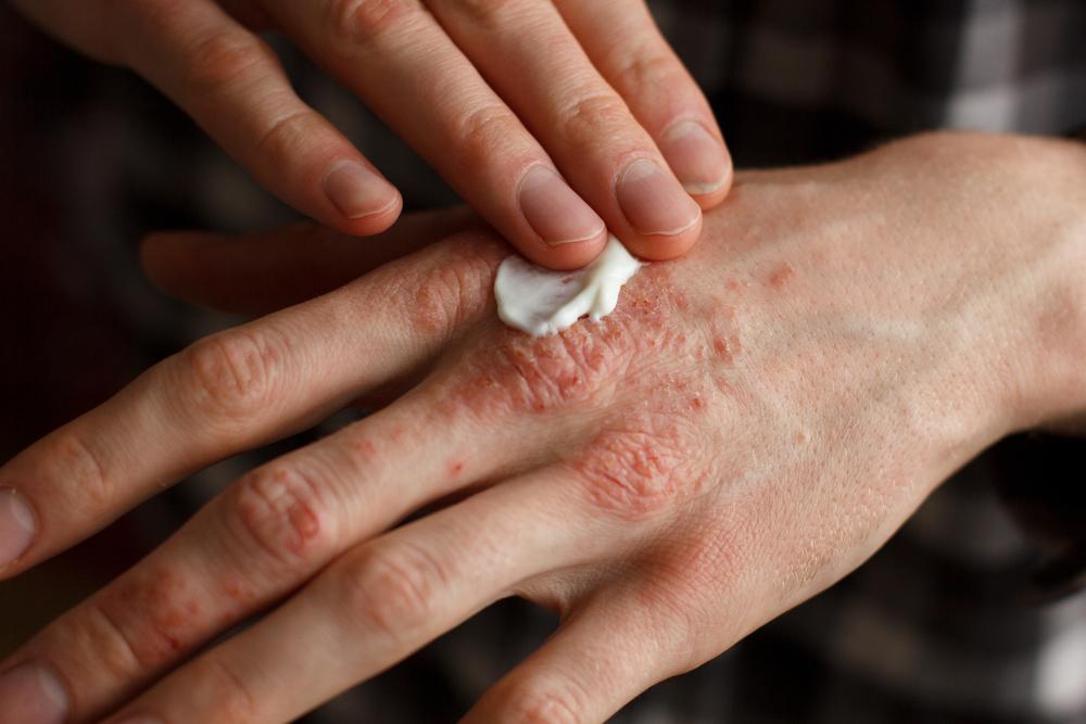 gyógyszerek immunitás pikkelysömör kezelésére