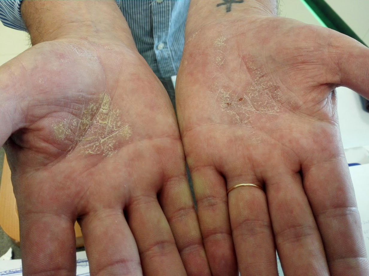 mit jelenthet egy piros folt a lábán vörös foltok a karok alatt a karokon