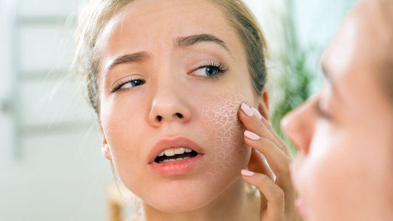 vörös foltok az arcon a kozmetikumoktól pikkelysömör kezelése in ein bokek