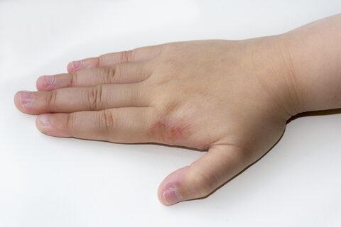 vörös foltok a kezek bőrén hogyan kell kezelni)