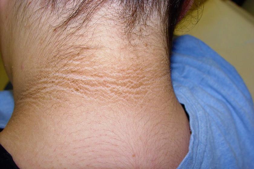 vörös foltok jelentek meg a gyomorban és a karokon vörös folt a fejbőr kezelésén