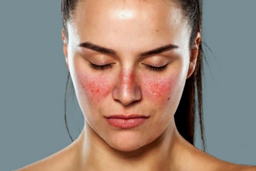amelyből az orr közelében lévő arcon vörös foltok vannak