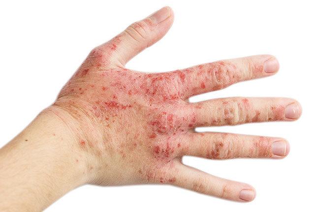 kezek és lábak viszkető vörös foltok jelennek meg)