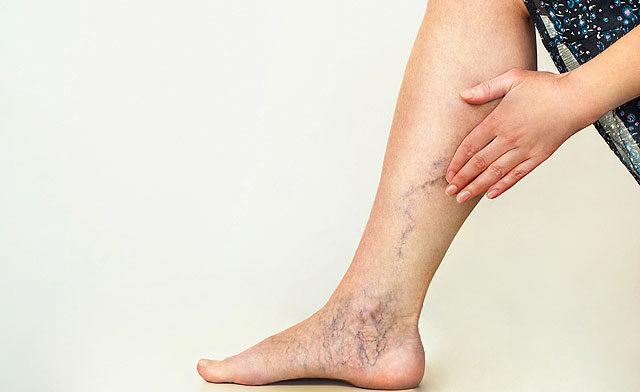a lábán vörös folt jelent meg visszérrel)
