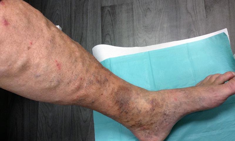 a láb duzzanata és egy piros nagy folt)